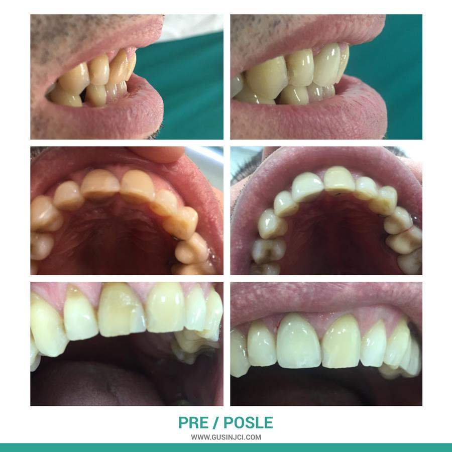 stomatološka ordinacija gusinjac novi pazar